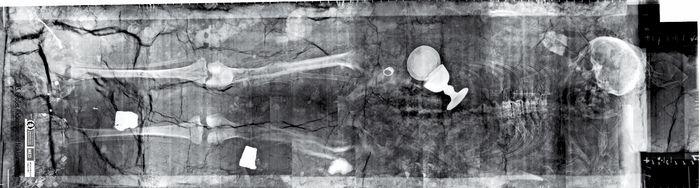 Die Bestattung des Erzbischofs Wichmann im Ergebnis der Computertomografie. © Landesamt für Denkmalpflege und Archäologie Sachsen-Anhalt, Oliver Großer (OVGU Magdeburg).